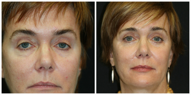 West Palm Beach Blepharoplasty - Before and After Lower Eyelids West Palm Beach