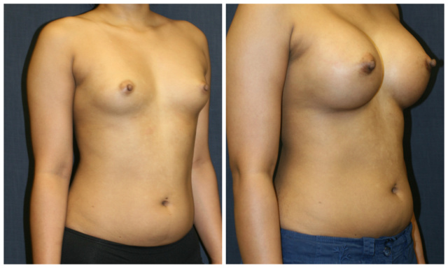 West Palm Beach Breast Augmentation - Before and After Mammaplasty West Palm Beach