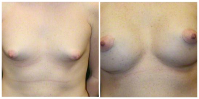 Breast Implants West Palm Beach - Before and after West Palm Beach Breast Implants Mentor Silicone Gel 350 cc Moderate Profile