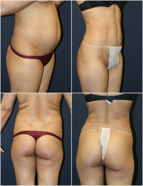 West Palm Beach Body Contouring
