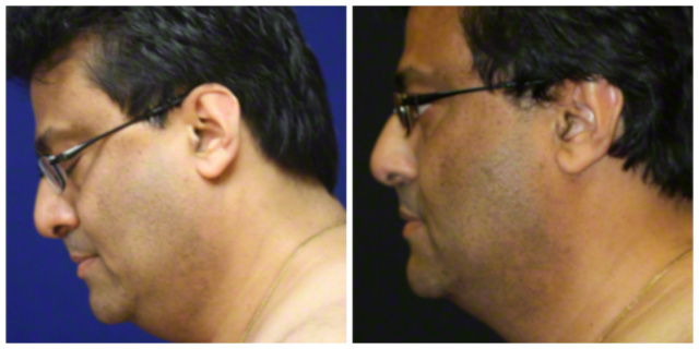 West Palm Beach Coolsculpting Double Chin - Before and after Nonsurgical Fat Reduction West Palm Beach Double Chin