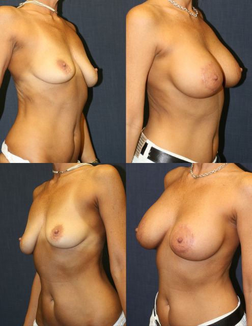 Breast Implants West Palm Beach - Before and After West Palm Beach  Breast Implants Saline with Periareolar Mastopexy