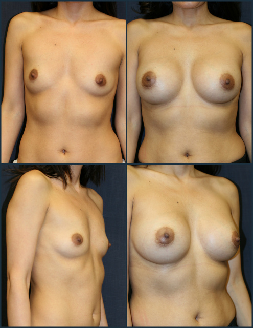 Breast Implants West Palm Beach - Before and After West Palm Beach Breast Implants