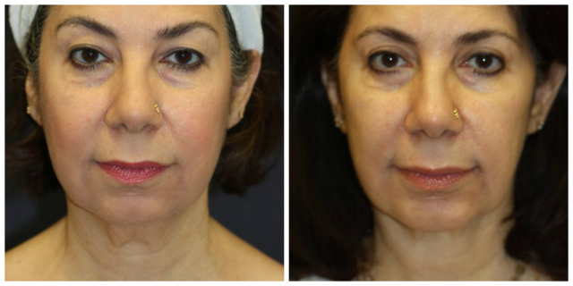 Blepharoplasty West Palm Beach - Before and After West Palm Beach Eyelids Surgery