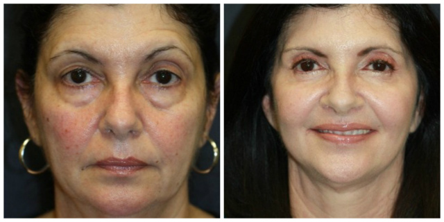 West Palm Beach Blepharoplasty - Before and After Eyelids West Palm Beach