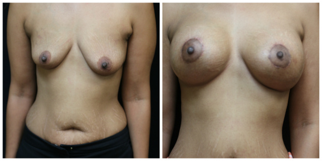 Palm Beach Breast Augmentation - Before and After Breast Augmentation Palm Beach