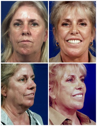 West Palm Beach Botox - Before and After