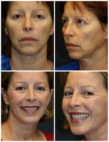 West Palm Beach Dermal Fillers