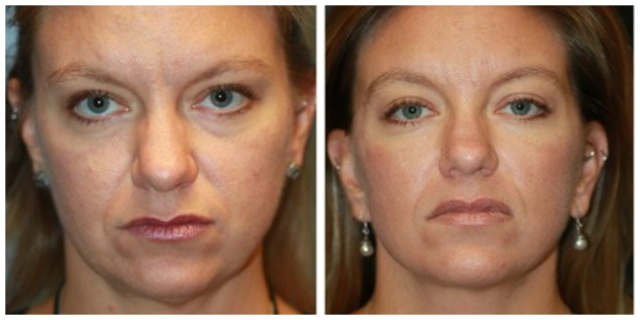 West Palm Beach Buccal Fat - Before and After Buccal Fat West Palm Beach