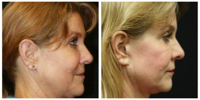 Facelift West Palm Beach - Before and After Facelift West Palm Beach