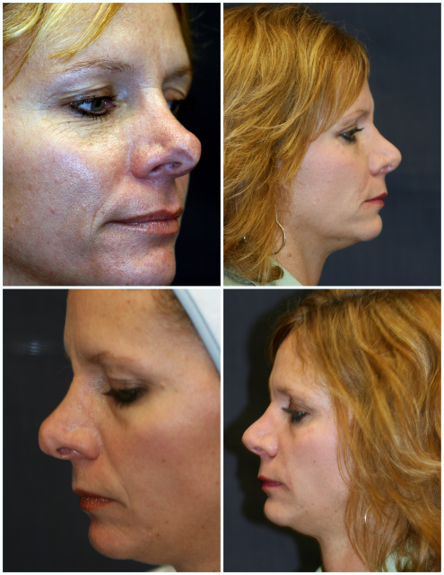 West Palm Beach Rhinoplasty - Before and West Palm Beach Nose Surgery Tipplasty (Tip Plasty West Palm Beach)
