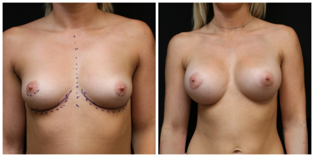 Palm Beach Breast Augmentation - Before and After Breast Augmentation West Palm Beach