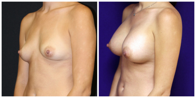 Breast Implants West Palm Beach - Before and After West Palm Beach Breast Augmentation