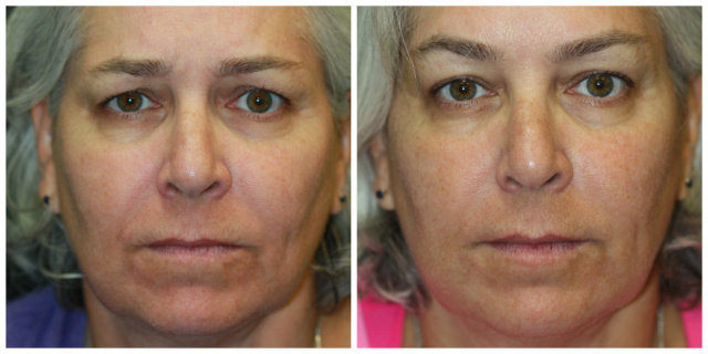Juvederm Vollure - Before and After Juvederm Vollure