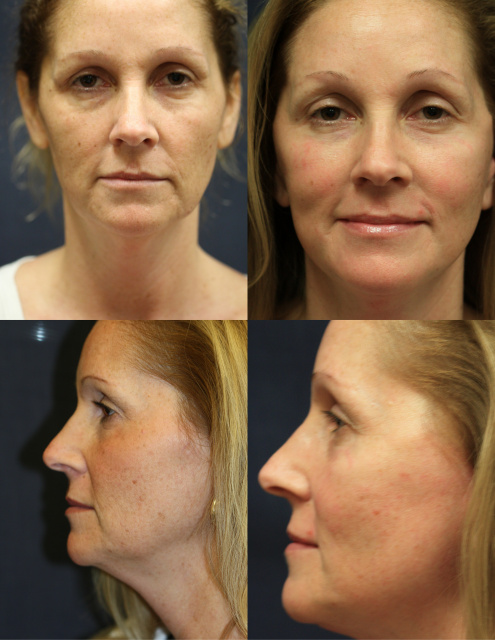 West Palm Bewach Laser Resurfacing