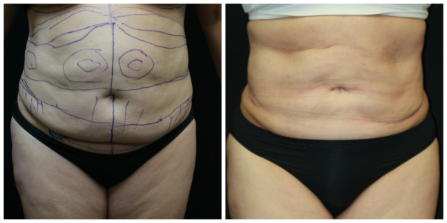 West Palm Beach Liposuction Revision - Before and After Revision of Liposuction West Palm Beach