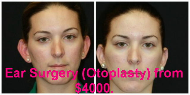 West Palm Beach Ear Surgery - Before and after Otoplasty West Palm Beach