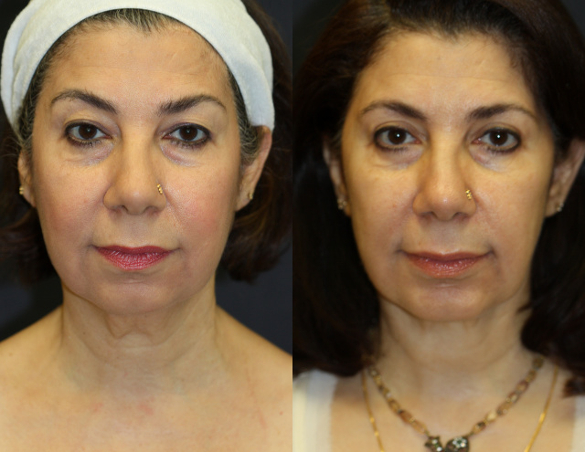 West Palm Beach Sculptra - Before and after Sculptra