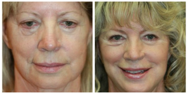 West Palm Beach Juvederm - Before and After West Palm Beach Dermal Filler
