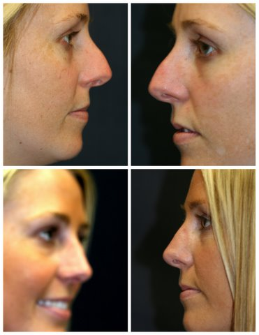Revision Rhinoplasty West Palm Beach - Before and After West Palm Beach Nose Surgery