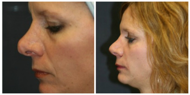 West Palm Beach Rhinoplasty - Before and after Rhinoplasty West Palm Beach