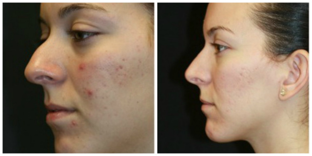 West Palm Beach Rhinoplasty - Before and after West Palm Beach Nose Surgery