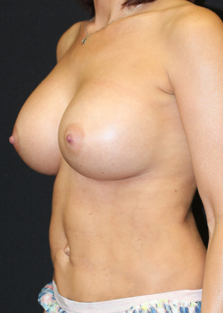 Post West Palm Beach Breast Augmentation for Upper Pole Fullness - Post West Palm Beach Sientra Breast Implants