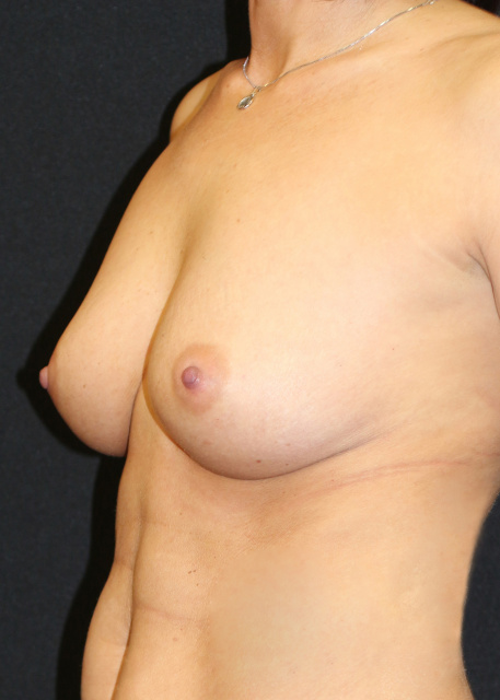 Breast Implants West Palm Beach With Upper Pole Fullness - Before West Palm Beach Sientra Breast Implants Pre