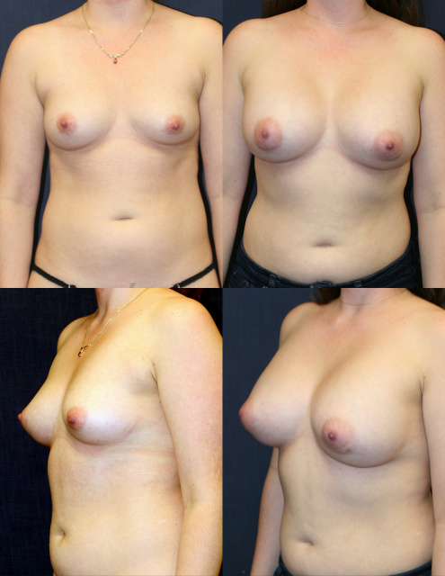 West Palm Beach Breast Implants - Using Mentor 350 cc Breast Implants West Palm Beach