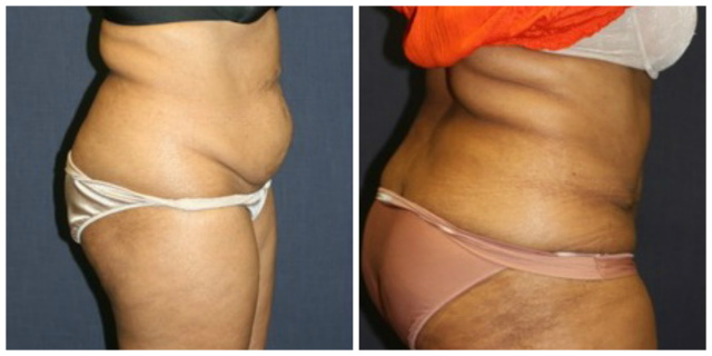 West Palm Beach Tummy Tuck - Before and after Abdominoplasty West Palm Beach