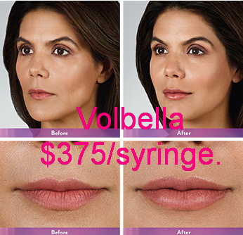 West Palm Beach Volbella - Before and after Volbella West Palm Beach
