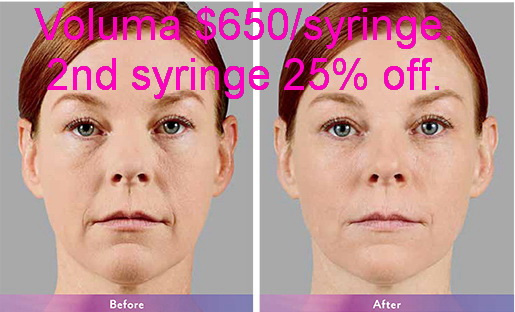 West Palm Beach Voluma - Before and After Voluma West Palm Beach