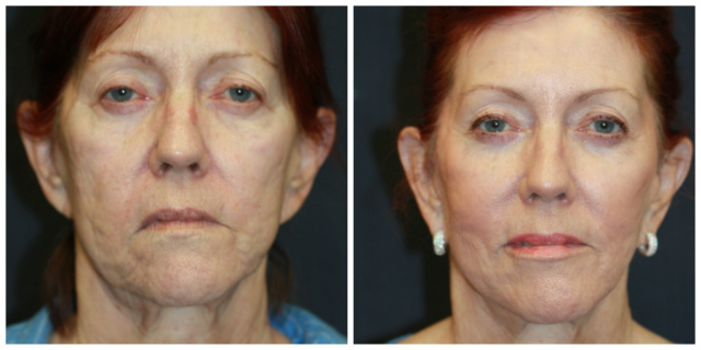 West Palm Beach Voluma - Before and After Voluma