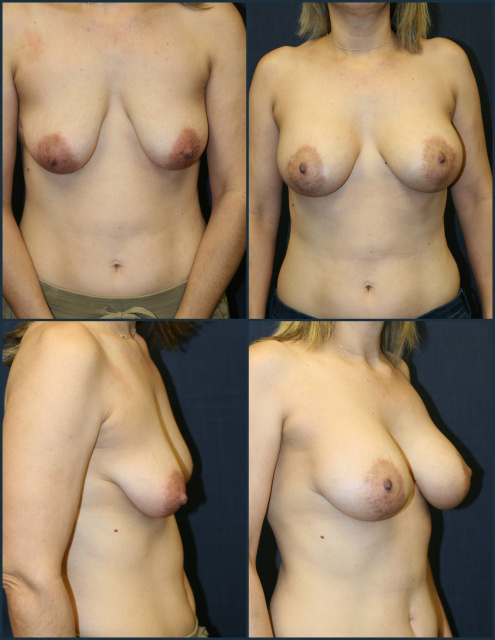 Breast Enhancement West Palm Beach