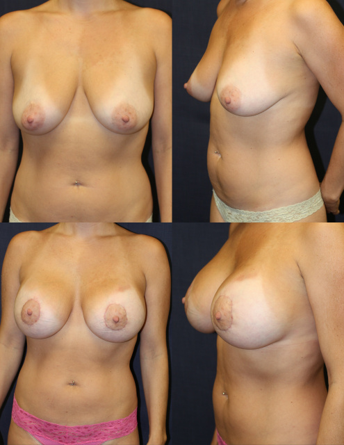 West Palm Beach Breast Lift - Before and After Mastopexy West Palm Beach