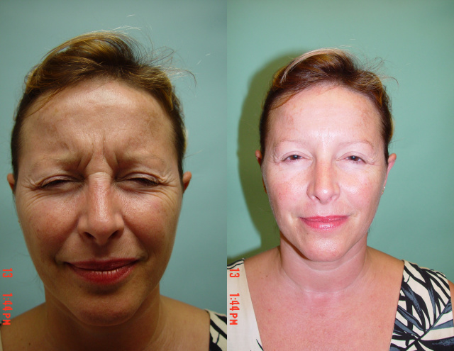 Botox West Palm Beach - Before and After