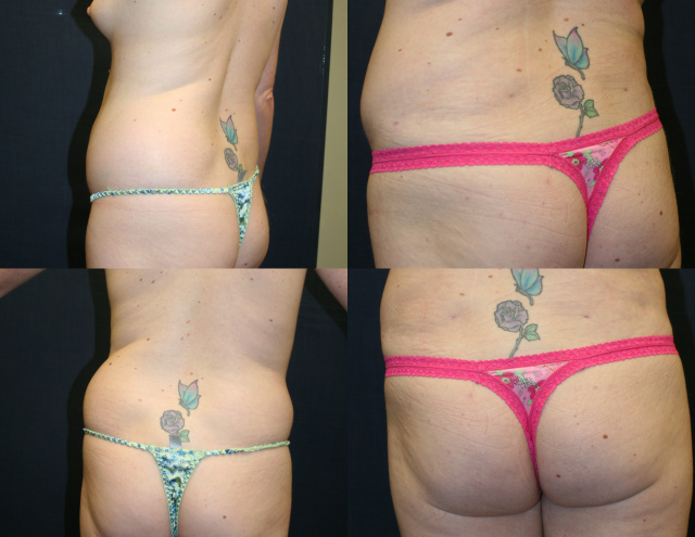 Butt Augmentation West Palm Beach - Before and After Brazilian Butt Lift West Palm Beach