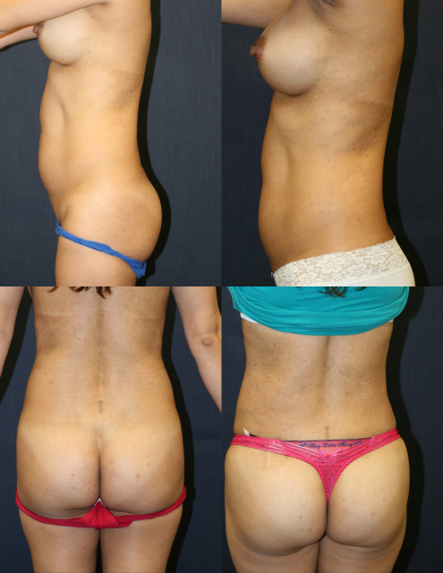 Body Contouring West Palm Beach - Before and After Brazilian Butt Lift West Palm Beach