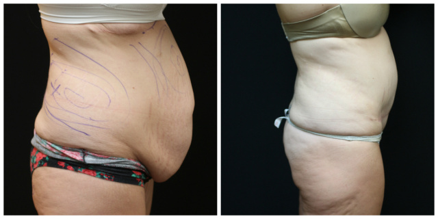 West Palm Beach Liposuction - Before and After Body Contouring West Palm Beach