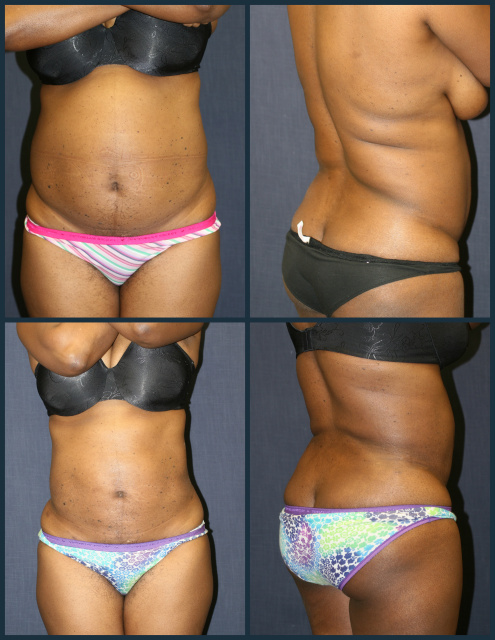 West Palm Beach Butt Augmentation - Before and After Brazilian Butt Lift West Palm Beach