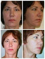 Micro Laser Peel West Palm Beach