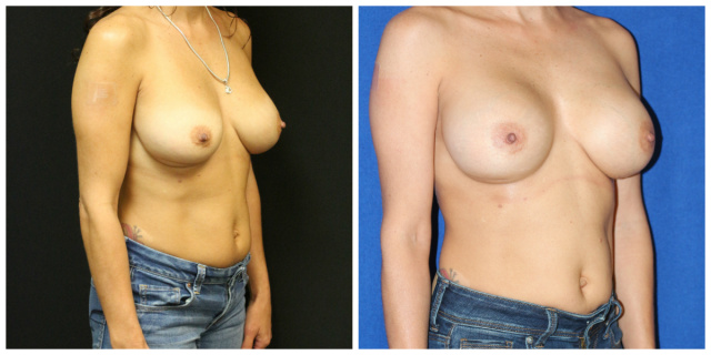 Palm Beach Breast Implants - Breast Implants Palm Beach