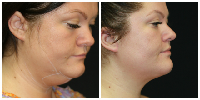 West Palm Beach Neck Liposuction - Before and after Chin Liposuction West Palm Beach