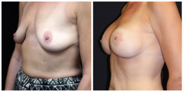 West Palm Beach Breast Implants - Before and After Breast Implants West Palm Beach Natrelle Inspira with periareolar mastopexy