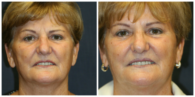 West Palm Beach Laser Resurfacing - Before and After Laser Resurfacing West Palm Beach