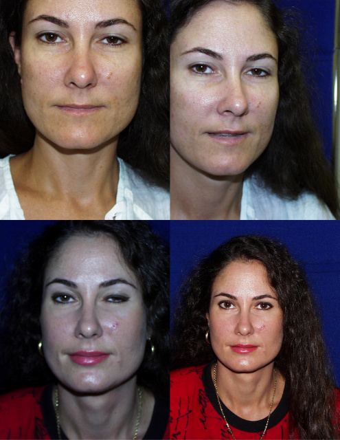 West Palm Beach Restylane Silk -Before and After Restylane Silk West Palm Beach