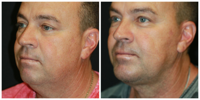 West Palm Beach Chin Implant - Before and After Chin Implant West Palm Beach