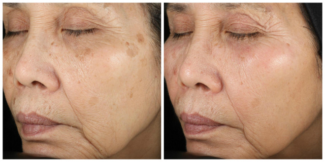 West Palm Beach Skincare - Before and after Skincare West Palm Beach