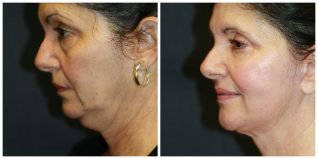 Double Chin West Palm Beach - Before and After West Palm Beach Double Chin Correction using Chin Liposuction West Palm Beach