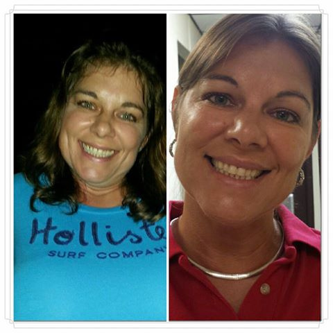 West Palm Beach Botox and Restylane - Before and After Botox West Palm Beach